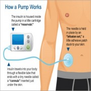 How an Insulin Pump Works