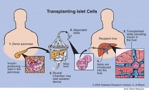 Islet Cells Transplant - The Detailed Procedure