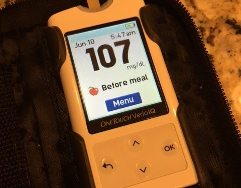 Islet Transplant - Before Meal - Blood Sugar